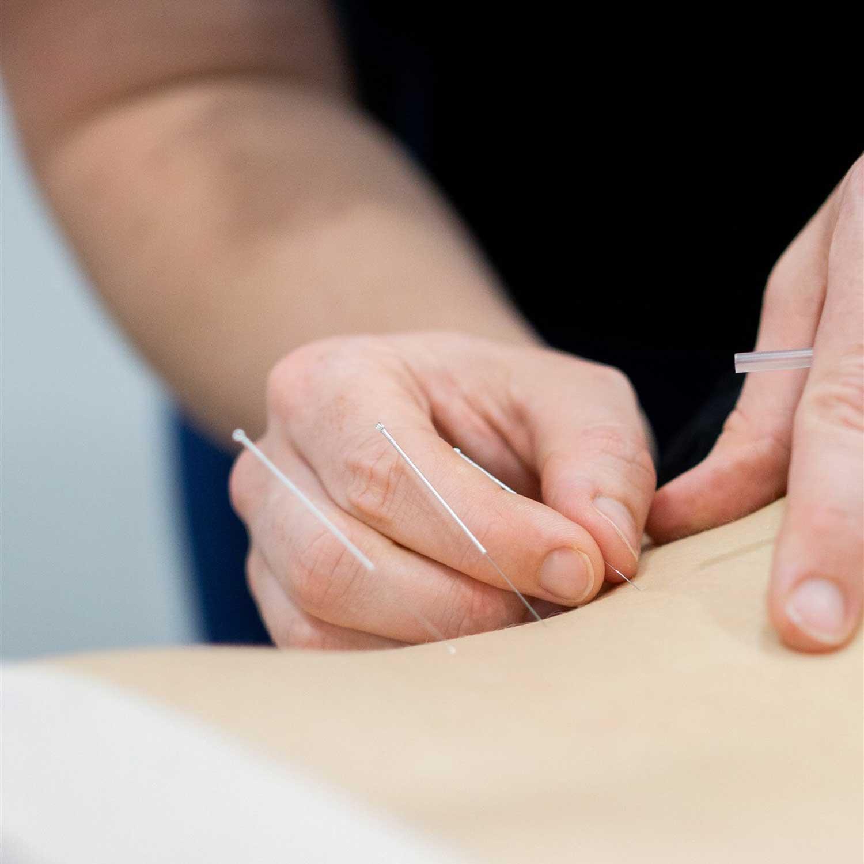 Invigorate Health and Performance, Dry Needling